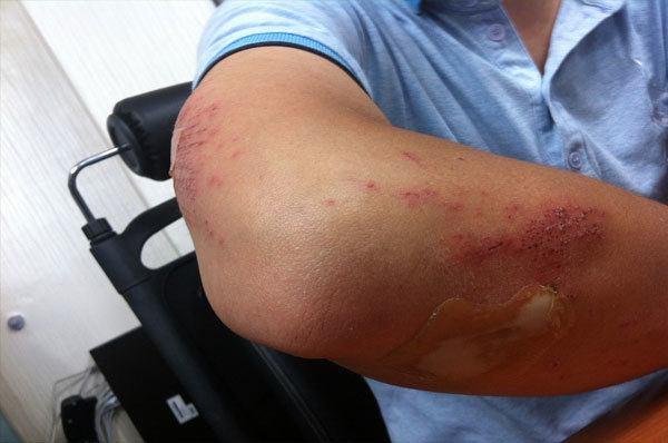 injured arm because of golfing